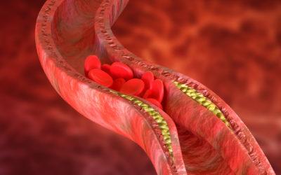 Nebezpečné mýty o vysokém cholesterolu v krvi